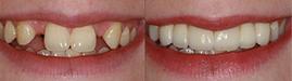 Зуби до косметичного втручання і після